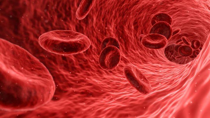 Cos'è l' aneurisma aortico ? Sintomi e cause